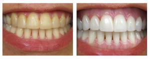 free teeth whitening kits photo 2