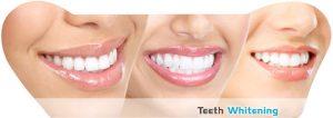 free teeth whitening kits photo 3