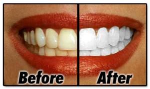 Get Free Teeth Whitening Samples
